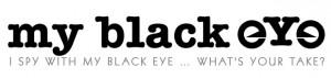 my black eye